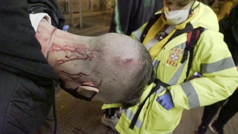 Un herido durante la carga de los Mossos, atendido por los voluntarios sanitarios.